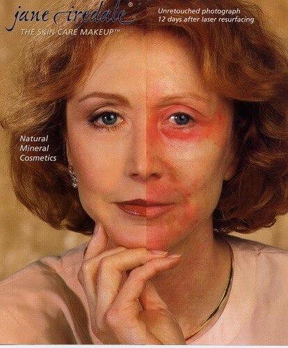косметика Джейн Айрдейл после лазера